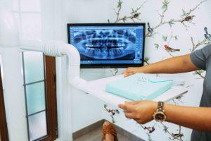 Pantalla con detalle de escáner dental